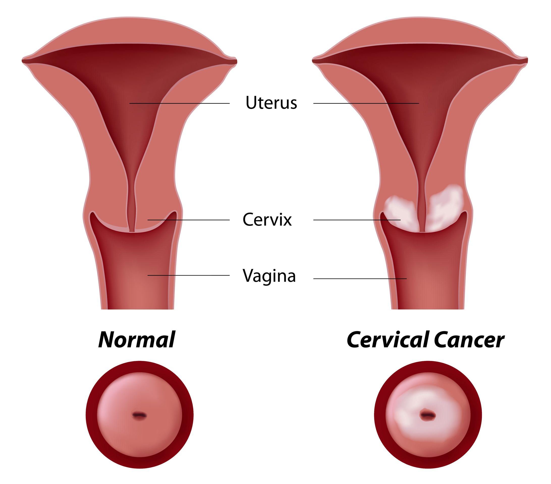Связанные женщины раком фото 14 фотография