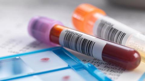Гепатит в что это и чем он опасен