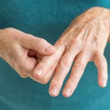 Воспаление нескольких суставов опухоль пятового сустава
